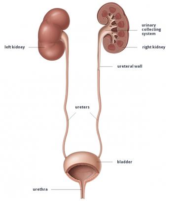 calcolosi-renale-1