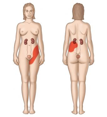 calcolosi-renale-2
